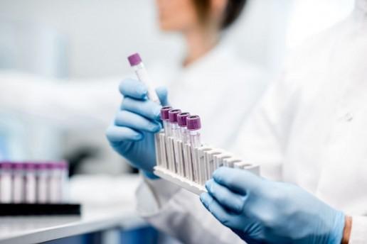 test sierologico covid 19 roma