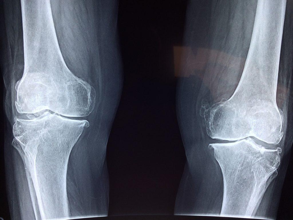 Artroprotesi ginocchio