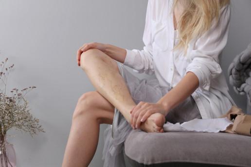 terapia sclerosanti